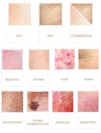 Skin Type condition